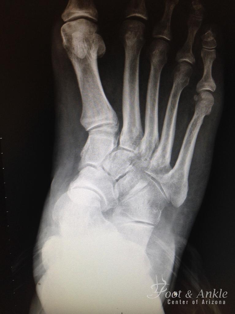flatfoot deformity xray