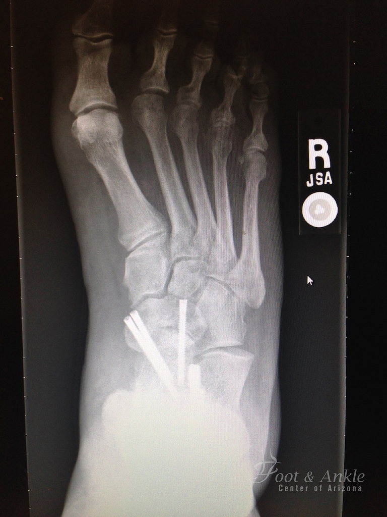 flatfoot correction xray