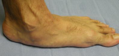 flatfoot
