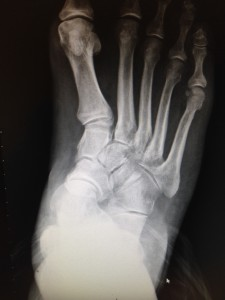 flatfoot deformity