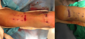 minimally invasive achilles