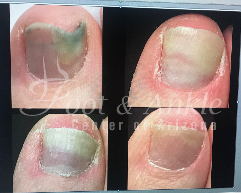 toe fungus treatment