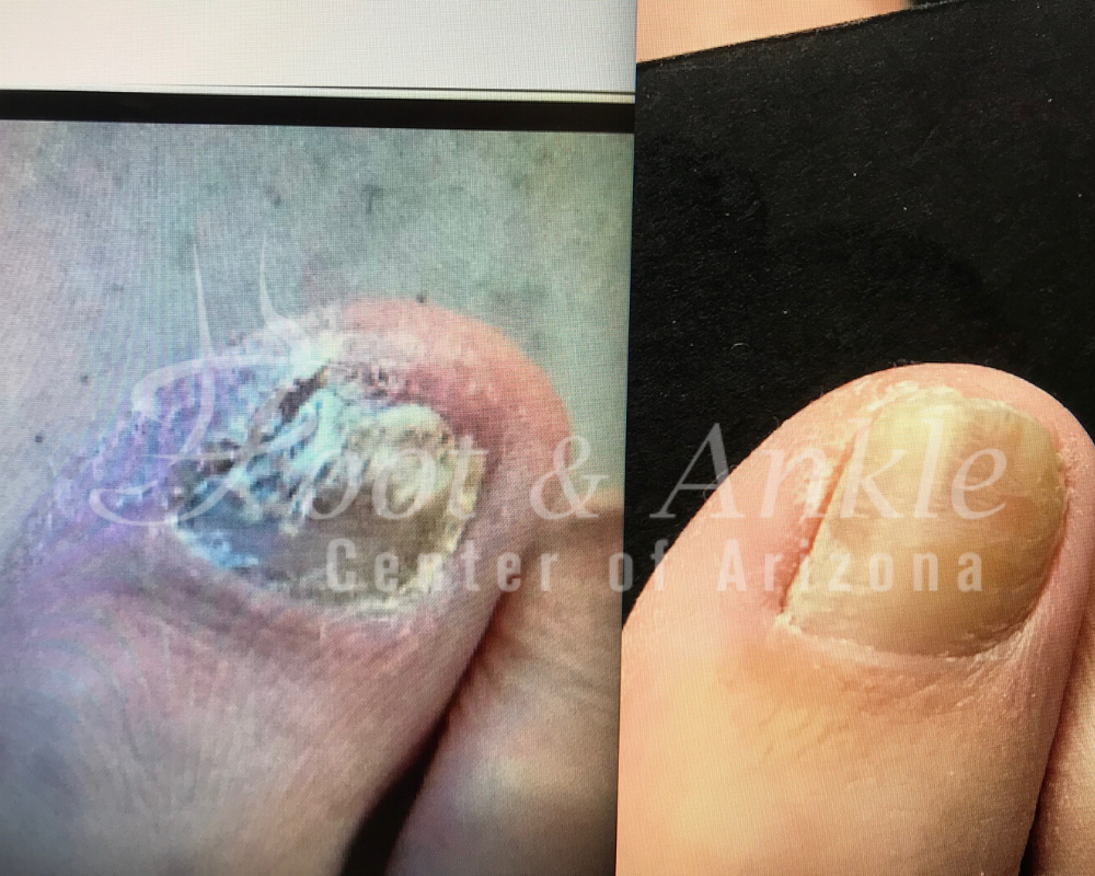 medication for toe fungus treamtment