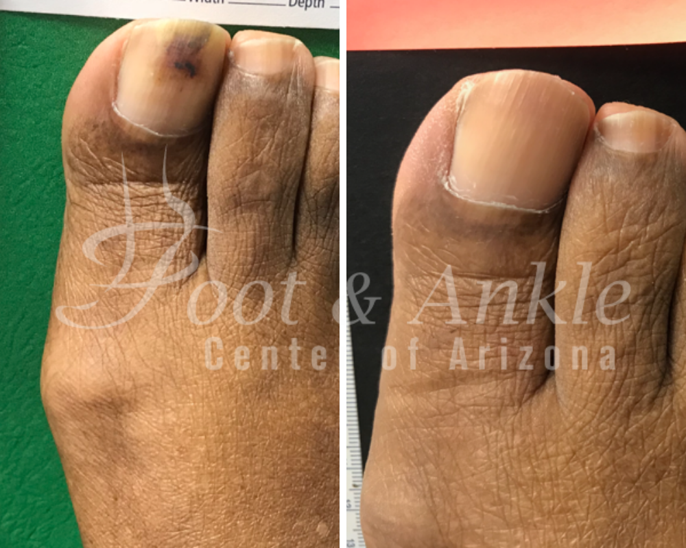 toe fungus medication
