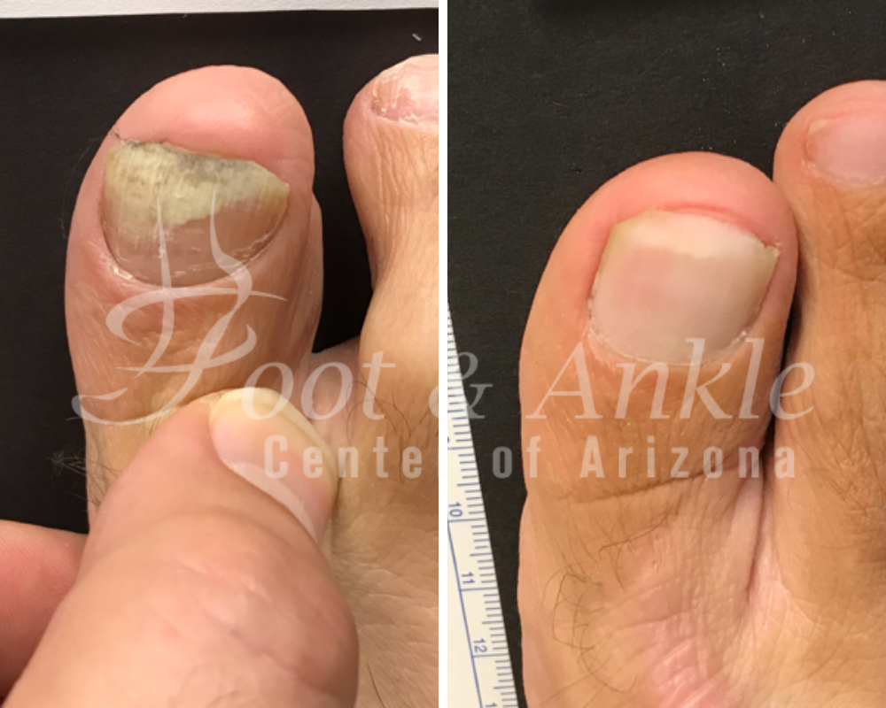 toe fungus laser treatment
